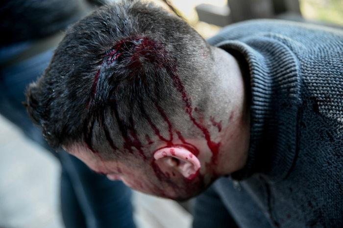 Άγρια σύγκρουση φοιτητών – ΜΑΤ στο Καβούρι: Χημικά, ξύλο και τραυματίες! (ΦΩΤΟ)