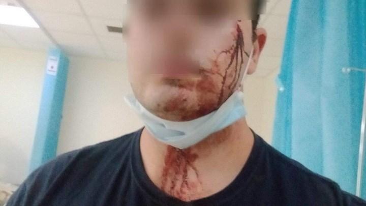 Μενίδι: Άγρια επίθεση σε αστυνομικούς επειδή τους χάλασαν το γλέντι – Δύο τραυματίες – ΦΩΤΟ