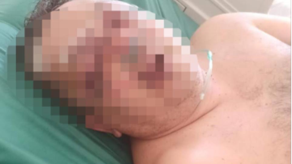Παξοί: Αλβανός αγρότης σακάτεψε αστυνομικό με σιδερολοστό – Καταδικάστηκε σε κάθειρξη εννέα ετών